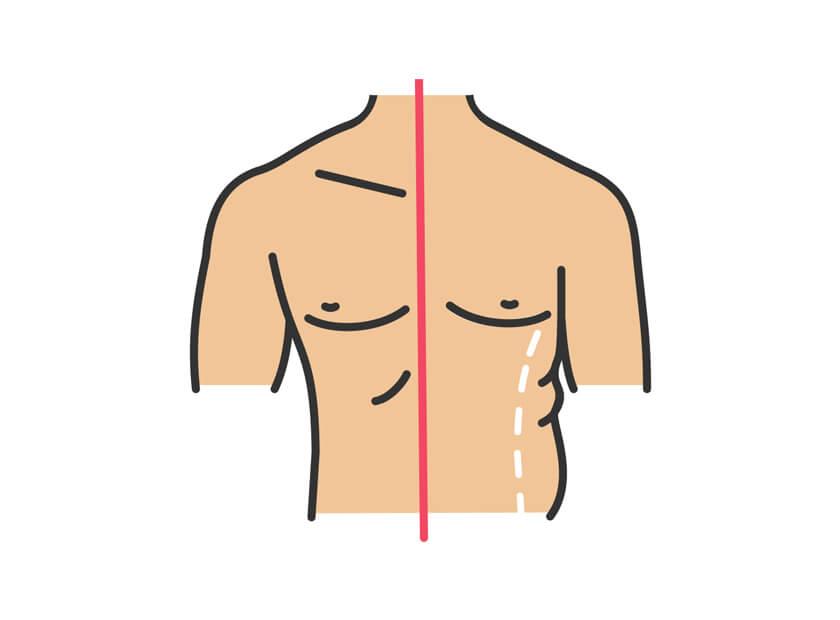 راهکار های پس از جراحی آبدومینو پلاستی