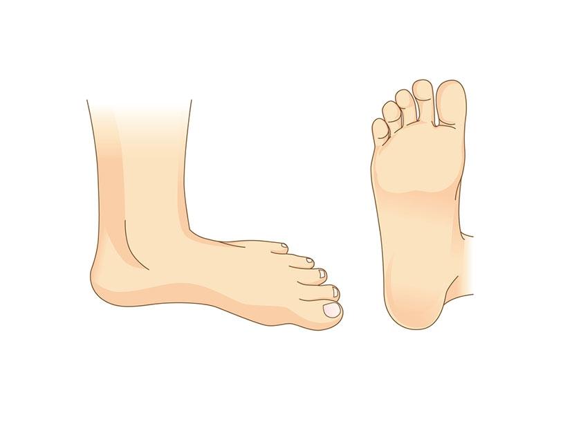 12 نکته برای مراقبت از پا در صورت ابتلا به دیابت