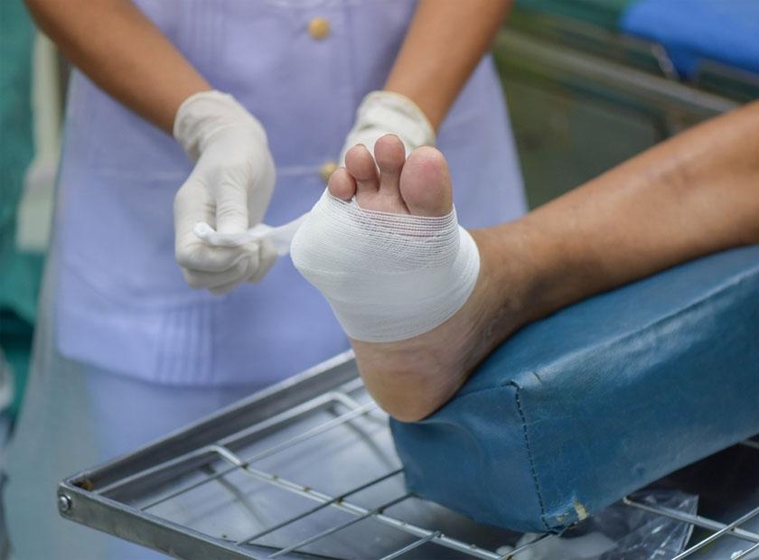 زخم های دردناک غیر قابل درمان ناشی از دیابت
