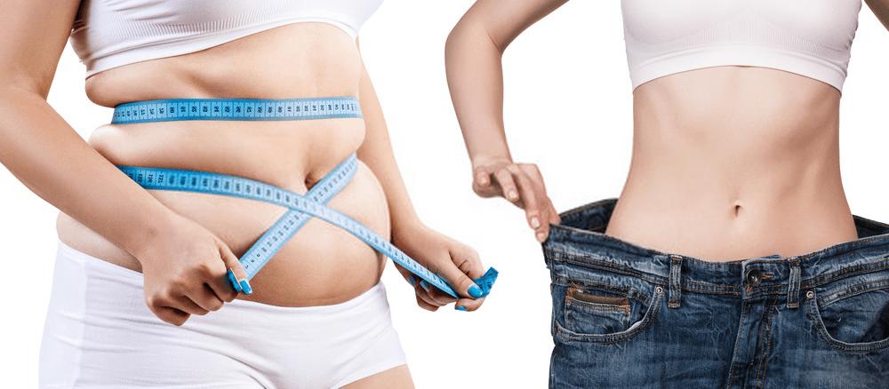 تفاوت جراحی چاقی و ابدومینوپلاستی