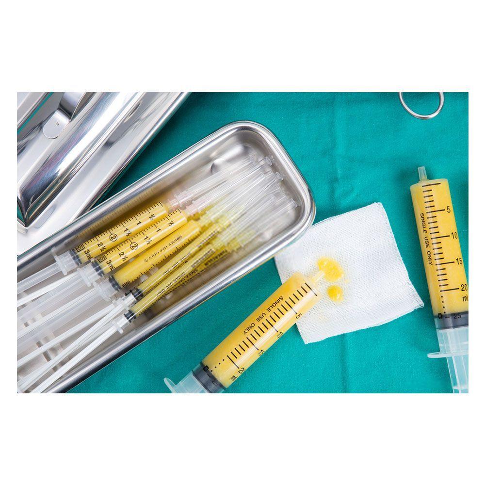 تزریق چربی در صورت