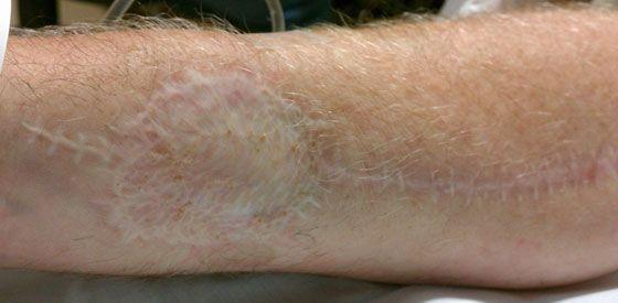 اسکار ناشی از پیوند پوست