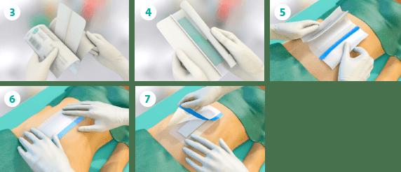 جراحی سوربکت